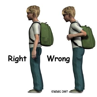 backpain in children